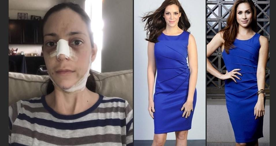Mulher gasta mais de R$ 90 mil para ficar parecida com Meghan Markle