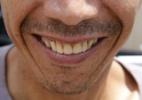 Reprodução/ Blog do Dentista