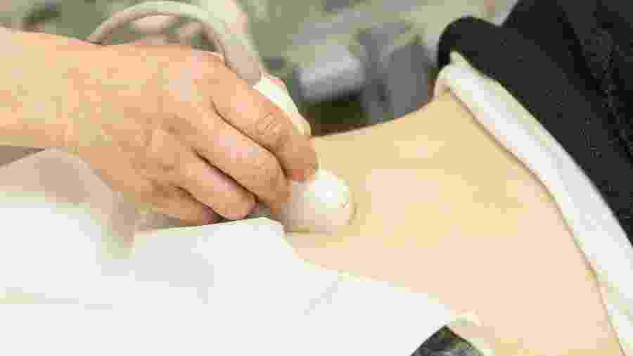 Durante um ultrassom de rotina, veio a suspeita de gravidez, mas Carolina usava implante havia 15 anos (imagem ilustrativa) - iStock