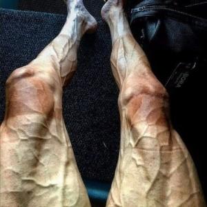 Pernas de Poljanski inchadas e com queimaduras de sol