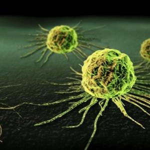 A suposta eficácia da fosfoetanolamina contra o câncer vem sendo discutida há vinte anos, mas a substância ainda não foi liberada pela Anvisa