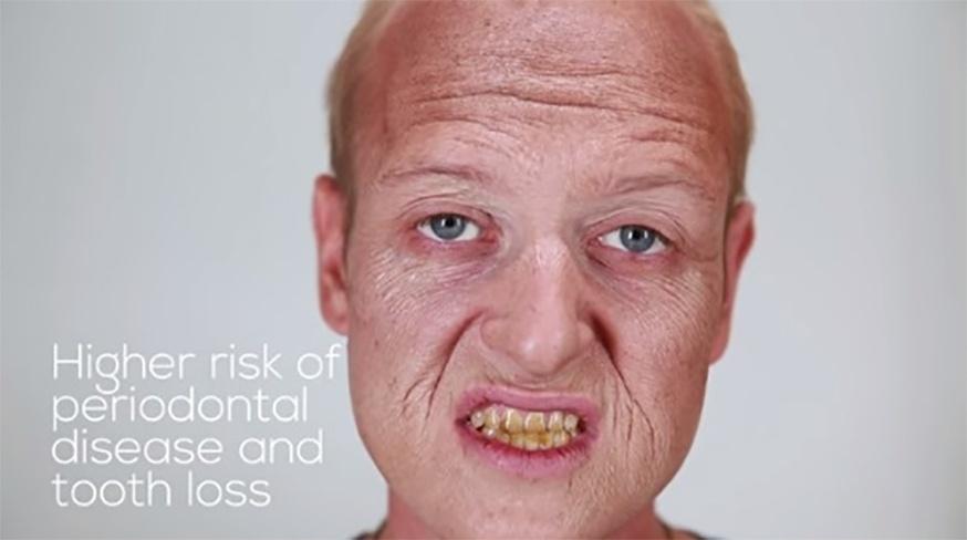 """8.set.2015 - Na transformação de Michael, que fuma dois maços por dia, o vídeo faz um alerta: """"maior risco de doença periodontal e perda dentária"""""""