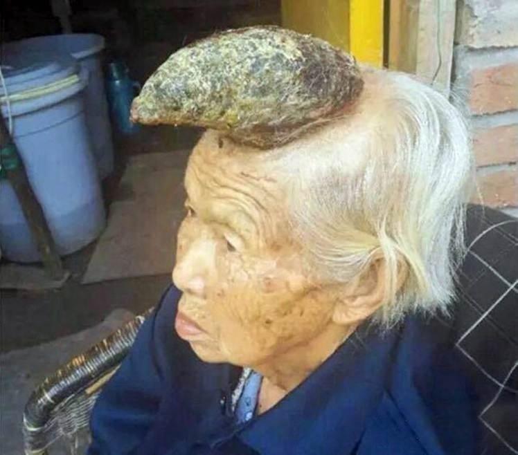 """28.ago.2015 - Uma chinesa de 87 anos surpreendeu os médicos após o crescimento de um 'chifre' de 13 centímetros na cabeça. Após várias idas ao hospital, médicos diagnosticaram a doença como """"corno cutaneum"""", um raro tumor queratinoso que tem a aparência de um 'chifre'."""