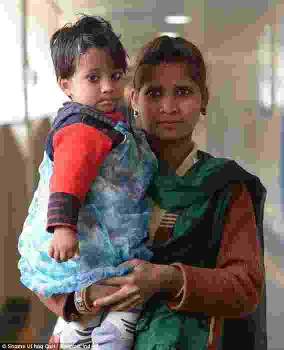 Em Nova Deli, na Índia, a pequena Varsha Sena, de dois anos, nasceu com uma terceira perna perto de sua coluna vertebral. Sua mãe, Komal Sena, resolveu procurar ajuda, e Varsha foi operada no final mês passado - Reprodução/DailyMail