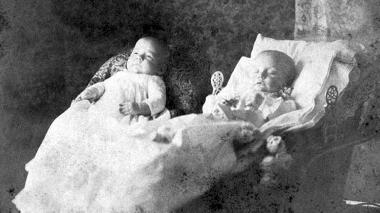 6.jun.2016 - Na imagem, o bebê gêmeo à direita está morto