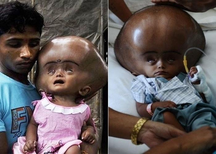 27.jun.2013 - Médicos indianos anunciaram que tiveram sucesso na segunda etapa da reconstrução do crânio de Roona Begum, a menina de um ano portadora de hidrocefalia, raro distúrbio que dobrava o tamanho de sua cabeça. A cirurgia de quatro horas no crânio de Roona aconteceu em um hospital perto de Nova Délhi, onde no mês passado os cirurgiões drenaram o fluido que havia no interior da cabeça da menina, em uma operação de vida ou morte. Na imagem, é possível observar a menina antes da primeira cirurgia (esq.) e depois dela, com parte do líquido já drenado de seu crânio (dir.).