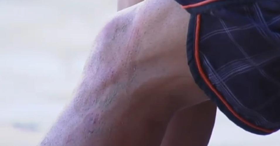 19.set.2013- O machucado de Marcos Oliver