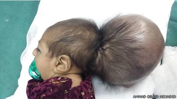 Médicos removem 'segunda cabeça' de bebê no Afeganistão: criança nasceu com um crânio colado à sua cabeça