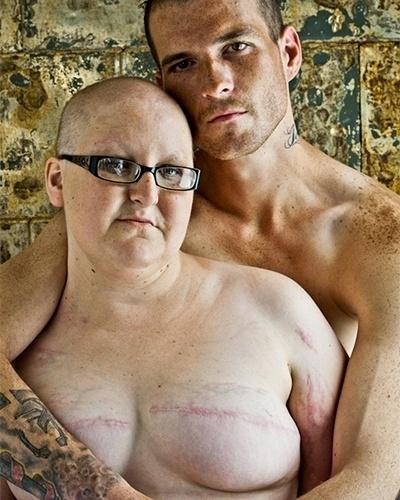 """O fotógrafo David Jay registra mulheres mostrando o resultado da mastectomia para o projeto """"The Scar"""""""