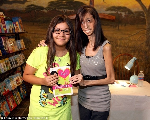 10.nov.13 - Lizzie Velasquez se tornou escritora e dá palestras  motivacionais para mostrar sua vida de superação e ajudar quem precisa de apoio. Ela já tem duas publicações que viraram best-sellers e faz cerca de 200 apresentações por ano.