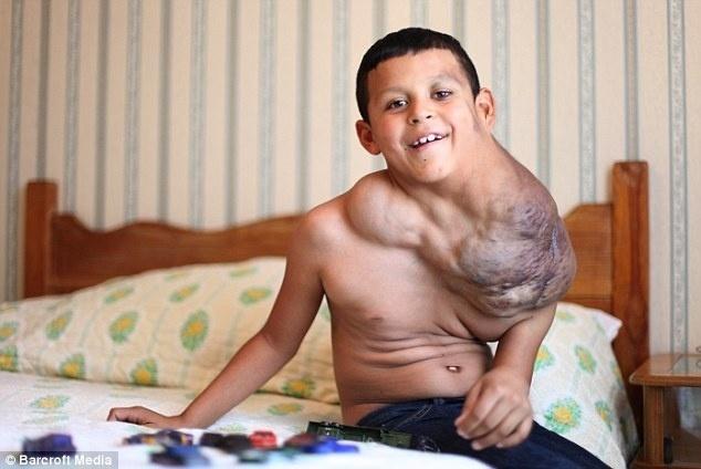 """11.nov.13 - Apesar de ainda faltar muito para sua cura, Jose Serrano tem esperanças de viver como uma pessoa normal. """"Se os médicos puderem me curar eu serei tão feliz. Quero ser saudável e poder fazer o que eu quiser. Correr por aí e me pendurar no balanço de argolas"""", revela o garoto em entrevista ao jornal britânico Daily Mail"""