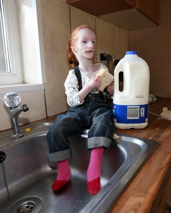 A pequena britânica Charlotte Garside nasceu com um tipo raro e não nomeado de nanismo. Em 2012, quando tinha cinco anos de idade, ela ganhou o título de menor criança do mundo porque media apenas 68 centímetros de altura e pesava cerca de quatro quilos