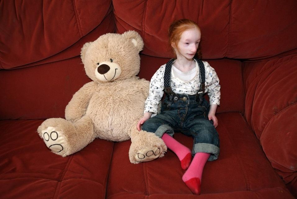 Além do nanismo raro, a pequena Charlotte Garside nasceu com o sistema imunológico bem fraco, que afeta seu desenvolvimento físico e mental.