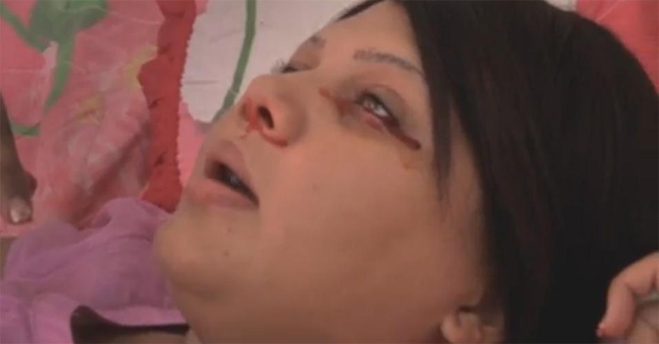"""5.dez.2013 - Em um vilarejo da República Dominicana, a jovem Delfina Cedeño sofre com uma doença rara. O sangue escorre do corpo da adolescente como se fosse suor e pode sair a qualquer instante de suas mãos, olhos, axilas e até orelhas. Onde mora, ela é chamada de """"a garota que sua sangue"""""""