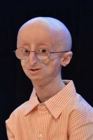 """27.jan.2014 - O adolescente Sam Berns, 17, morreu """"de velhice"""" aos 17 anos em decorrência de uma doença rara conhecida como progeria ou síndrome de Hutchinson-Gilford, que causa envelhecimento precoce. O efeito é semelhante ao que acontece com o personagem Jack (interpretado por Robin Williams), do filme homônimo, em que o menino, com uma doença rara, envelhece em uma velocidade bem acima do esperado."""