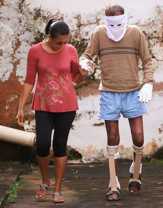 05.abr.2014 - Márcio Rony da Cruz Nunes, de 37 anos, ficou com 75% do corpo queimado depois de resgatar três pessoas de uma família em um ônibus incendiado em São Luís, no Maranhão.