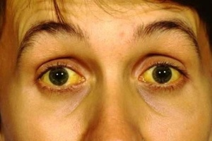 Olhos amarelos é um dos sintomas das doenças do fígado