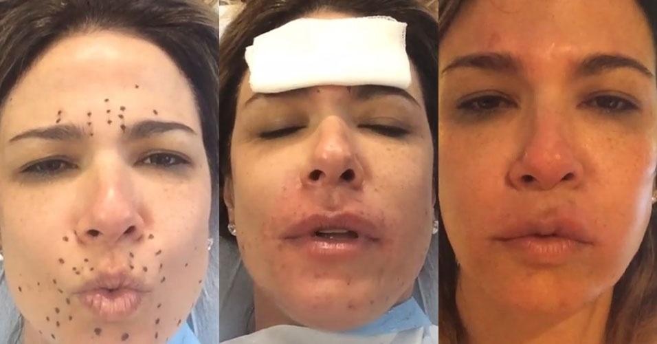 Terapia antirruga de famosas que usa sangue pode ativar for Noticias de ultimo momento de famosos