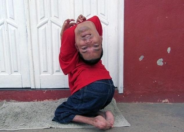 """2.set.2014 - Claudio Vieira de Oliveira, 37, é portador de uma deficiência rara conhecida como artrogripose congênita. Nascido com a cabeça totalmente virada para baixo, Claudio foi desenganado pelos médicos ainda no hospital, em Monte Santo, na Bahia, quando ainda era um bebê. Mesmo com limitações, o brasileiro tornou-se um exemplo de superação. Os movimentos que a maioria das pessoas faz com as mãos, Claudio faz com a ajuda da boca. Além disso, ele usa sapatos especiais que facilitam sua locomoção. Com o apoio da família, Claudio frequentou a escola normalmente e graduou-se pela Universidade Feira de Santana. Hoje, ele é palestrante motivacional. """"Ao longo de minha vida, aprendi a adaptar meu corpo ao mundo"""", declarou em entrevista ao Daily Mail"""
