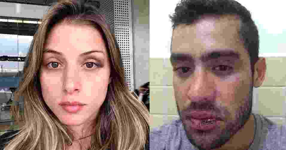 No Instagram, Angela Souza, até então namorada do ex-BBB Yuri Fernandes, postou uma foto em que aparece com hematomas no rosto - Reprodução/Instagram