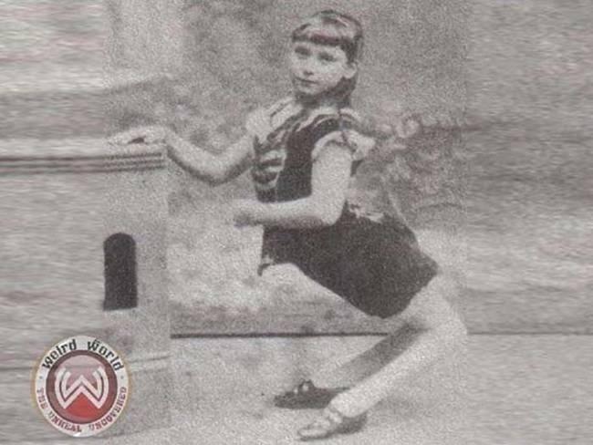 """4.nov.2014 - Em 1886, Ella Harper, que nasceu com uma deformidade que fazia seus joelhos serem virados para trás, escreveu sobre sua condição: """"Eu sou chamada de menina camelo porque meus joelhos são voltados para trás. Eu posso andar melhor com minhas mãos e pés, como você me vê na imagem. Viajei consideravelmente no show business nos últimos quatro anos e agora já é 1886 e eu pretendo sair do show business e ir para a escola e me encaixar em uma outra ocupação"""". De fato, não se soube mais de Ella assim que ela saiu do circo, mas até hoje fotos suas circulam pela web"""