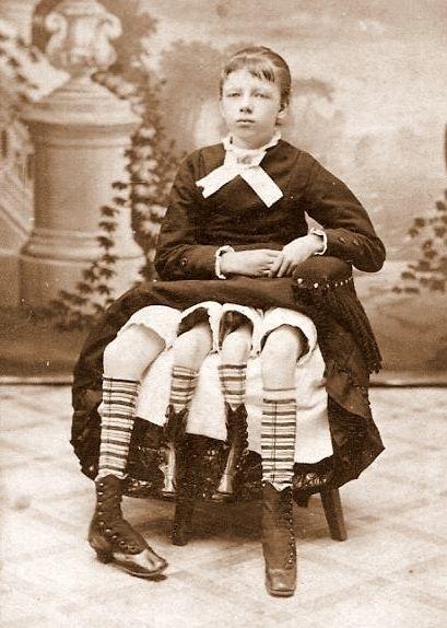 6.nov.2014 - Josephine Myrtle Corbin nasceu em 1868 nos EUA com uma anomalia rara chamada de dipygus dibrachius tetrapus. No caso específico da moça trata-se também de um caso de síndrome da duplicação caudal. Na verdade, ela possuía uma irmã gêmea, mas durante a gravidez, os óvulos fecundados não se separaram completamente e acabaram crescendo unidos a partir de alguma fase da gestação. Não é um caso de gêmeo parasita, mas de bebê dípigo, em que Josephine possuía outro corpo completamente duplicado apenas da cintura para baixo, incluindo dois sistemas reprodutores e excretores.