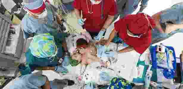 """A reconstrução dos corpos das meninas foi supervisionada por uma equipe especialista em expansão do tecido da pele - Allen S. Kramer/Texas Children""""s Hospital/Reprodução/Daily Mail"""