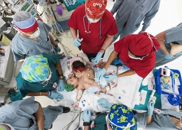23.fev.2015 - As gêmeas siamesas Knatalye Hope e Adeline Faith, de 10 meses, foram separadas após uma cirurgia que durou 26 horas. O procedimento, segundo o  jornal The New York Daily News, aconteceu no dia 17 de fevereiro, no Hospital Infantil do Texas, em Houston (EUA), mas somente no último domingo (22) ele foi divulgado para a imprensa. Os bebês, de acordo com a reportagem, passam bem. A operação exigiu a atuação de 38 médicos de várias especialidades. As crianças eram ligadas pelo abdômen e compartilhavam o fígado, o diafragma, o revestimento do coração e o intestino. Elas pesavam juntas cerca de 3kg, quando nasceram. Na imagem, equipe médica se prepara para a cirurgia.