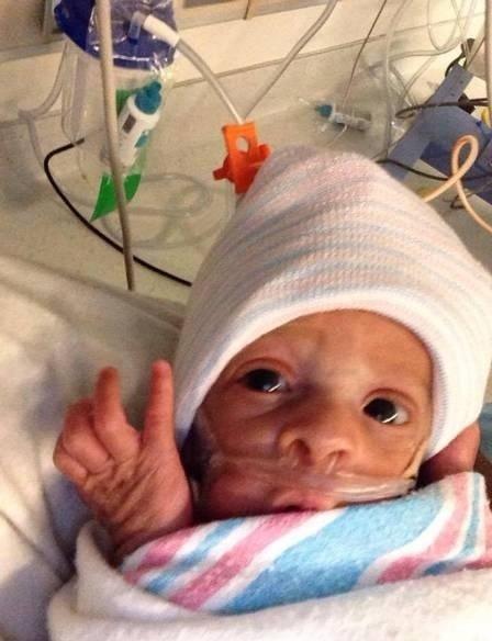 """24.fev.2015 - O site britânico Daily Mail deu destaque ao bebê que nasceu sem romper o saco amniótico - também conhecido como a """"bolsa amniótica"""" - na Califórnia, nos Estados Unidos. Segundo os médicos do Cedars-Sinai Medical Center, o caso é considerado raro. O parto aconteceu no início deste mês, porém só foi divulgado para a imprensa nesta terça-feira (24). A criança, que se chama Silas Phillips, veio ao mundo com apenas 26 semanas de vida - quase três meses antes do esperado. Na imagem, a criança aparece no bercário.  Silas passa bem e, segundo a equipe médica, poderá ir pra casa no próximo mês."""