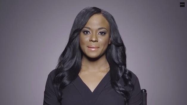 27.fev.2015 - Uma marca de cosméticos lançou uma campanha que revela pessoas  sem maquiagem com problemas grave na pele. Em uma série de vídeo, anônimos mostram suas imperfeições e relatam dramas. Cheri, que sofre de vitiligo, diz que as pessoas não conseguem enxergá-la além da pele.