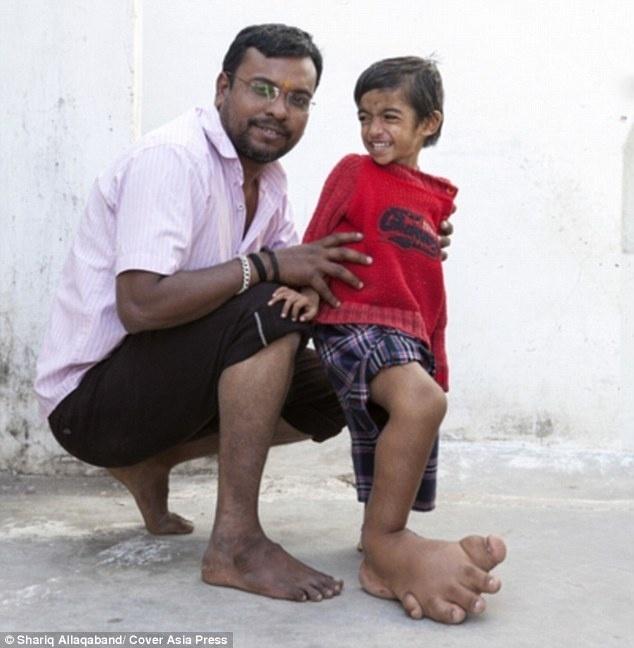 """10.mar.2015 - Alguns médicos acreditam que o pé direito de Verdant deve ser amputado. Mas o pai é contra. """"Amputar o pé o deixaria incapacitado para o resto da vida. Ainda espero encontrar algum médico que consiga curar o que ele tem"""", declarou Dilip Kumar ao DailyMail"""