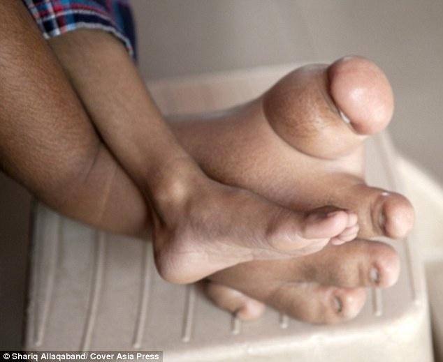 Na imagem, os pés de Verdant Joshi, de 4 anos. O membro direito nasceu bem maior que o pé esquerdo e hoje pesa 5 kg