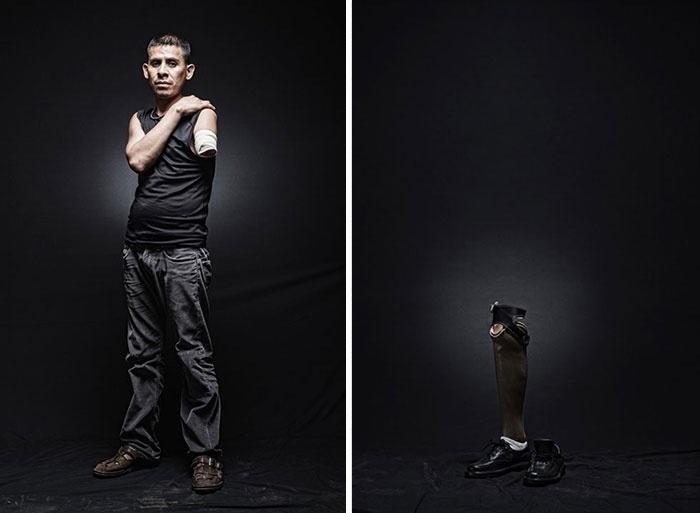 30.mar.2015 - Armando, de El Salvador, acabou perdendo um dos braços enquanto fazia o trajeto ilegal até os Estados Unidos. O projeto fotográfico de Nicola Frioli, denominado