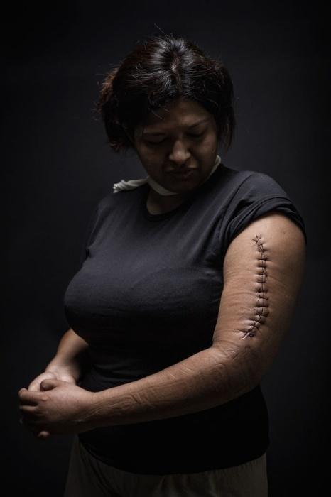 30.mar.2015 - Mariana, de 29 anos, fazia ilegalmente o trajeto entre Honduras e Estados Unidos. Ela foi empurrada por assaltantes e machucou o braço. Além disto, Mariana quase foi estuprada. O projeto fotográfico de Nicola Frioli, denominado