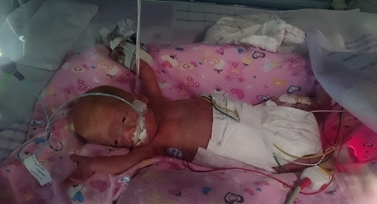 23.out.2015 - Após o parto, a pequena Pixie foi colocada imediatamente em uma embalagem de sanduíche e em seguida seguiu para a incubadora