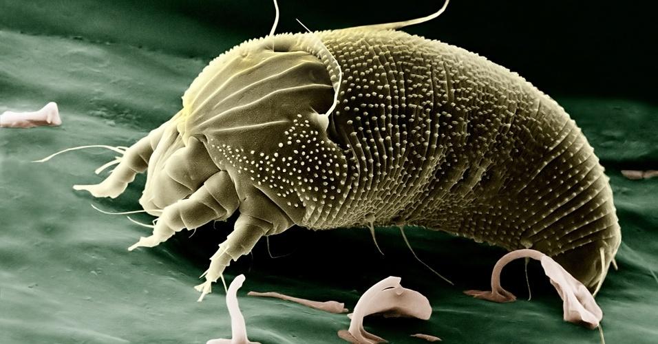 """5. A palavra """"ácaro"""" vem do grego akares, que significa """"pequeno"""". A maior parte dos ácaros adultos mede entre 0,25 mm e 0,75 mm"""