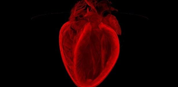 Reprodução/BOL/British Heart Foundation via BBC