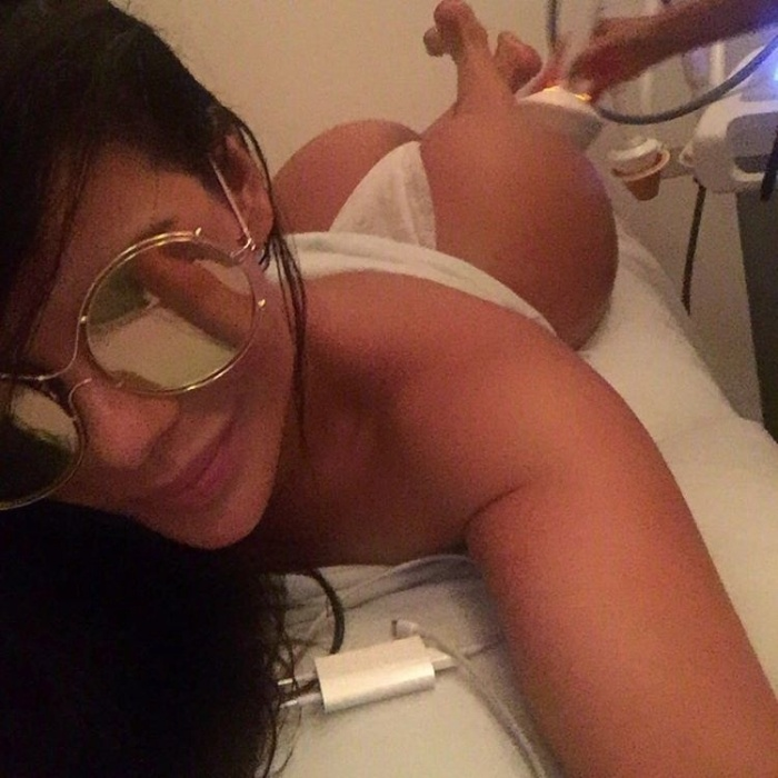 """3.mar.2016 - Suzy Cortez divulga foto de tratamento anticelulite no Instagram. Claro que a beldade não escondeu seu atributo: """"Com meu bumbum famoso não poderia deixar de compartilhar estes segredinhos"""", compartilhou na rede social"""