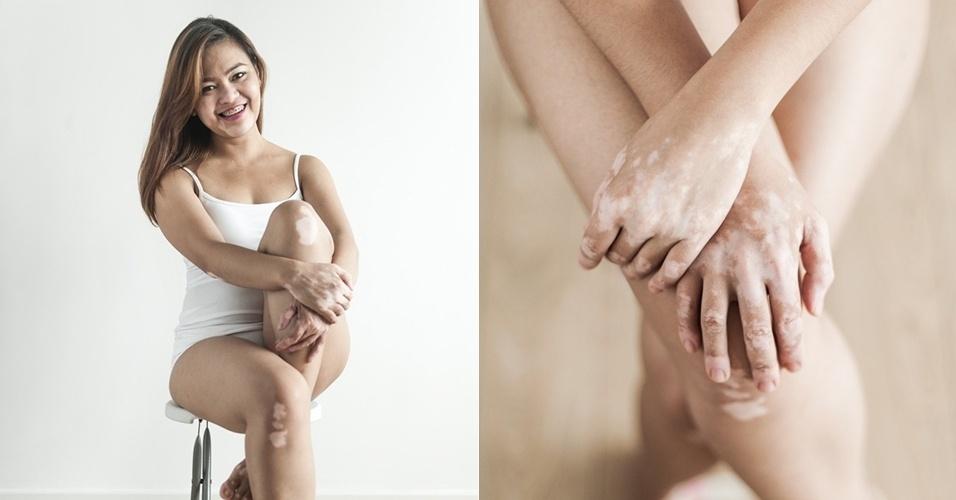 20.out.2015 - A professora Precious, de 26 anos, possui vitiligo. ?Eu tenho doença autoimune em que minha imunidade mata as células produtoras de pigmento da pele. Todo mundo tem falhas, acontece que as minhas são mais óbvias que as dos outros?, explica para a revista Plump