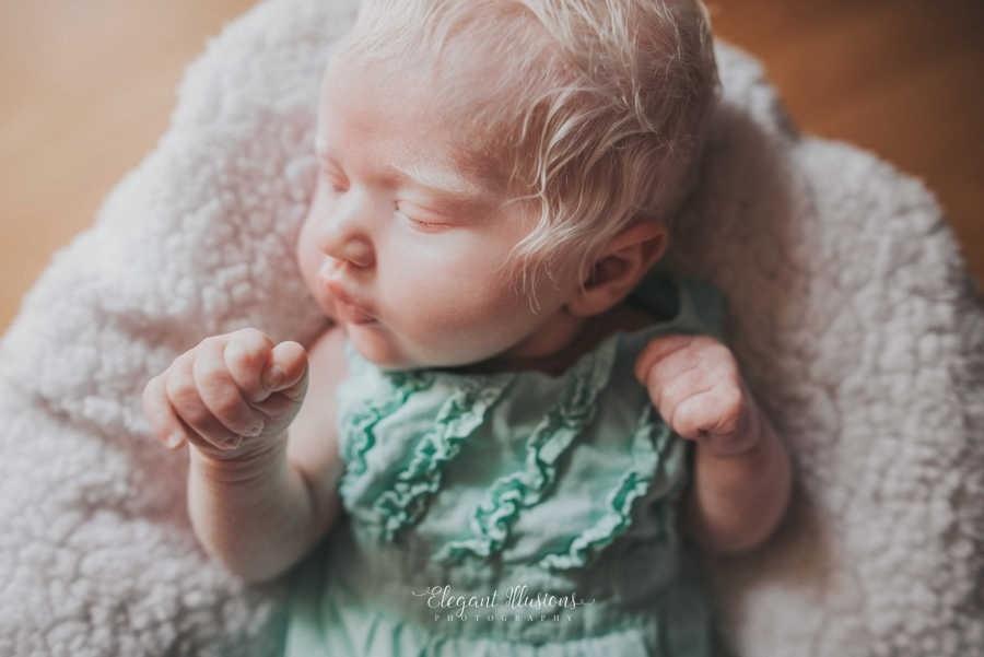A mãe da bebê ficou insegura ao saber da notícia de ter uma filha albina