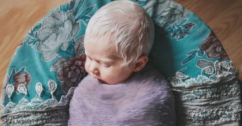 15.abr.2018 - Taylor Dunnavant recebeu uma surpresa quando sua bebê Noralynn nasceu, ela era albina