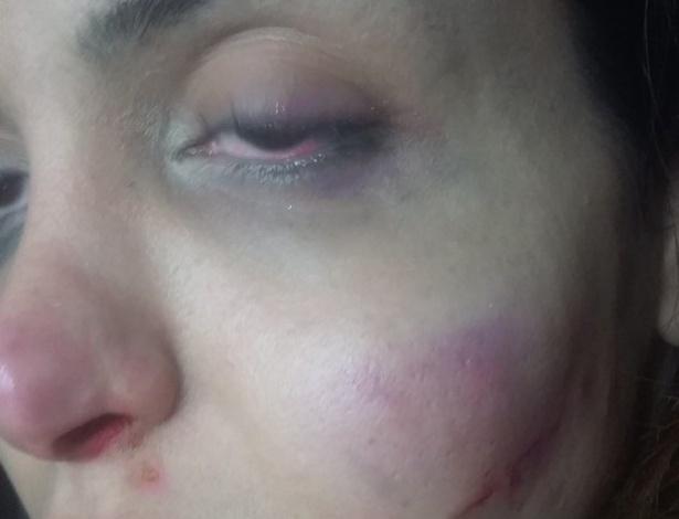9.ago.2015 - No vídeo, Viviany Beleboni afirma que não procurou a polícia por que não queria passar por outra humilhação.