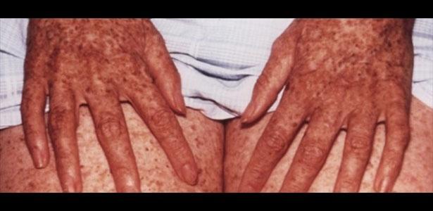 Descoramento de descascamento químico de pele