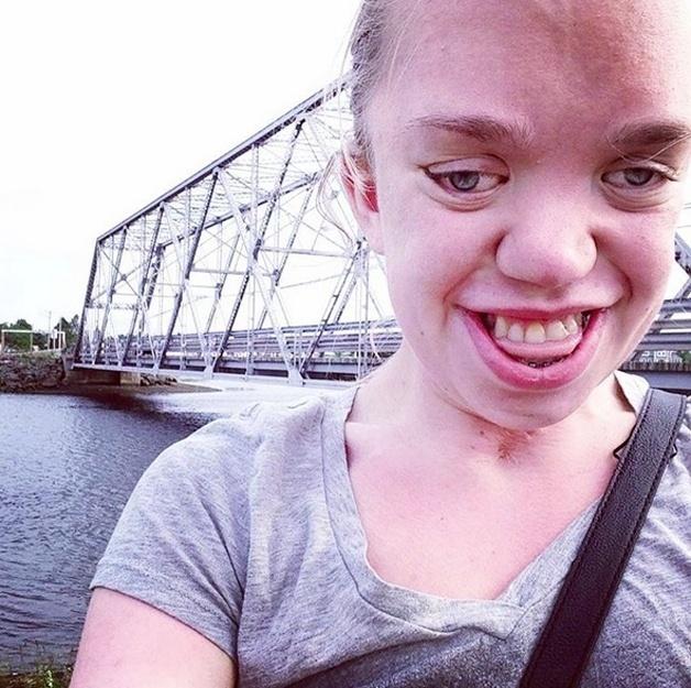 3.set.2015 - A estudante norte-americana Renee Dushane, portadora de uma síndrome genética rara, conhecida como Síndrome de Pfeiffer, bombou na web com um post inspirador em seu Tumblr. A doença da jovem faz com que ela tenha uma má formação nos ossos d