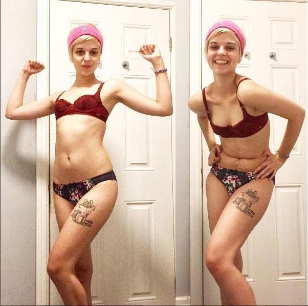 12.fev.2017 - Connie conta sua luta no Instagram após superar a anorexia