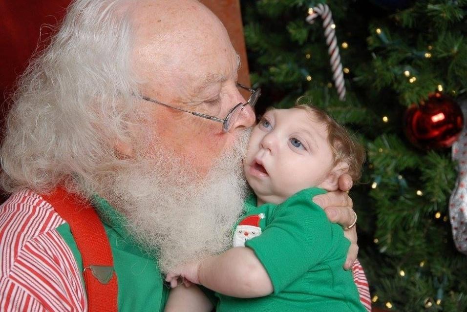 """10.dez.2015 - Expectativa de vida de bebês com microhidranencefalia é de poucos meses. Apelidado de """"Forte Jaxon"""" (Jaxon Strong em inglês), o garoto completou um ano e três meses de novembro"""