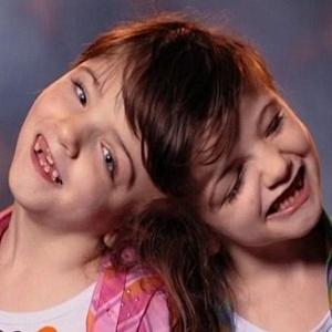 19.ago.2015 - Segundo os médicos, Tatiana e Krista Hogan nunca poderão fazer uma cirurgia de separação; as duas compartilham pensamentos