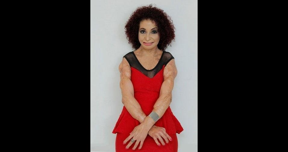 Suzana Batista de Sousa, 36 anos, do Distrito Federal