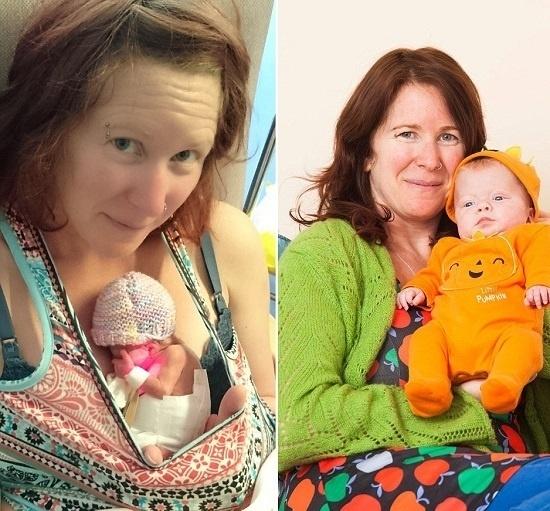 """23.out.2015 - No hospital, Sharon só teve permissão para ver a filha seis horas depois, quando se recuperou da operação (foto à esquerda). """"É incrível que ela tenha sobrevivido, mas também foi muito traumático. Ela viveu hora por hora por cerca de três semanas"""", desabafou a britânica"""