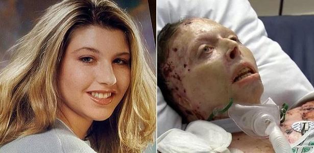 Mulher teve 80% do corpo queimado pelo ex-namorado há dois anos